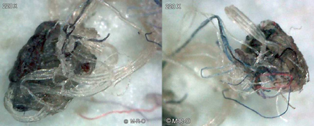 Morgellons-Faser 2